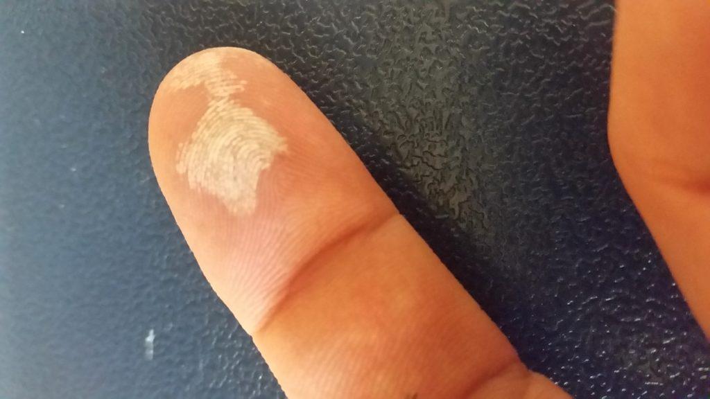Hydrogen peroxide finger burn