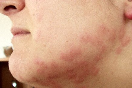 bed bug bites on face