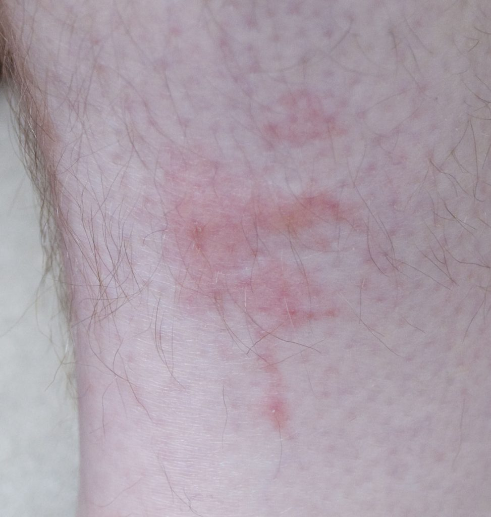bedbug bites on leg